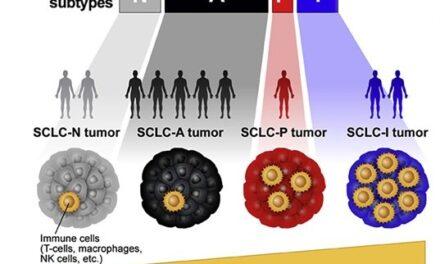 STUDIU: Cancerul pulmonar microcelular poate fi clasificat în patru subtipuri, în funcție de profilul expresiei genice