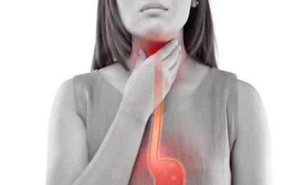 Boala de reflux gastroesofagian este legată de riscuri mai mari de cancer laringian și esofagian