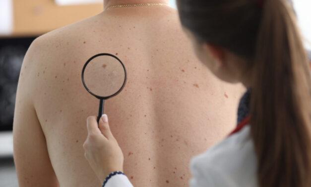 Niveluri mai ridicate de testosteron asociate cu un risc mai mare de melanom la bărbați
