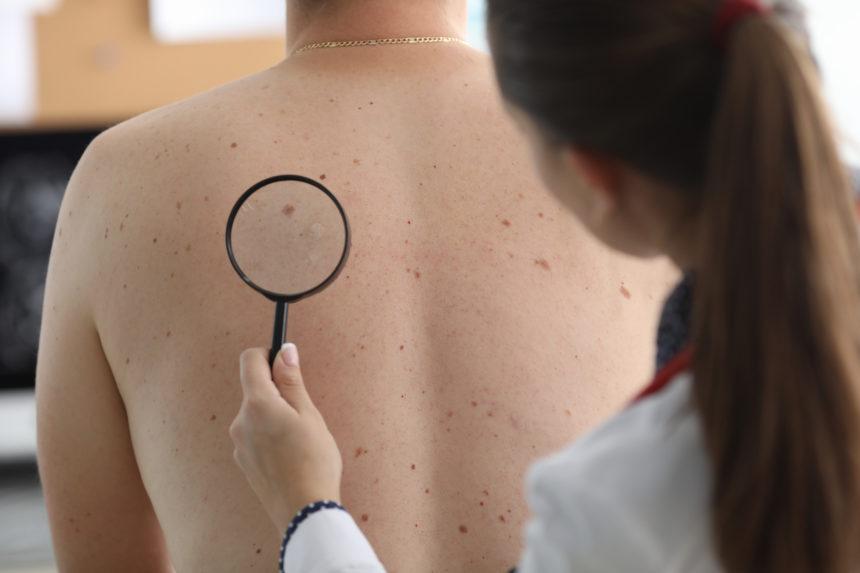 Cinci factori de risc pentru cancerul de piele în timpul iernii