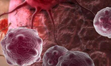 Cum protejează radicalii de oxigen împotriva cancerului