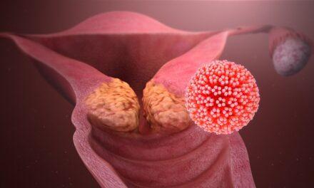 România poate accesa finanțare europeană  pentru a elimina cancerul de col uterin și alte cancere provocate de infecția cu HPV