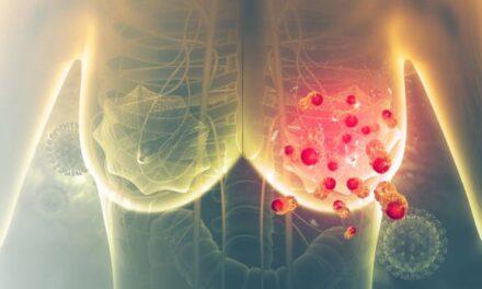 Ce trebuie să știți despre chimioterapia pe cale orală și cancerul de sân
