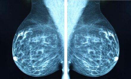 Omiterea screeningului mamografic crește riscul de deces din cauza cancerului de sân