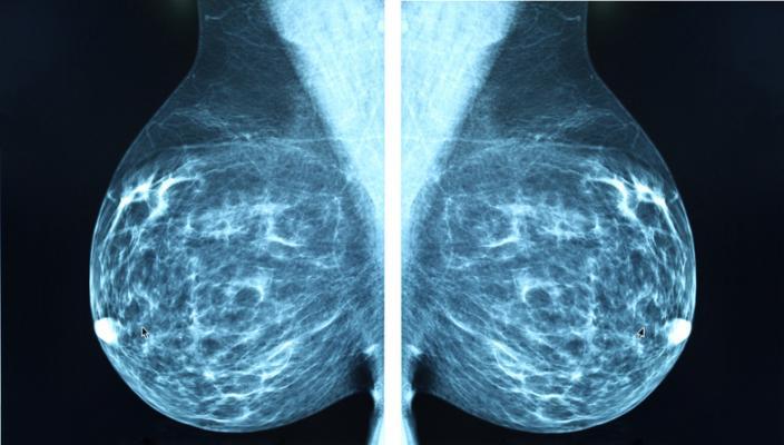 Mamografia: de ce este importantă într-o anumită etapă a vieții femeii?