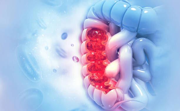 STUDIU: Secvențierea întregului genom al cancerului colorectal metastatic identifică trăsăturile moleculare specifice și efectele tratamentelor anterioare