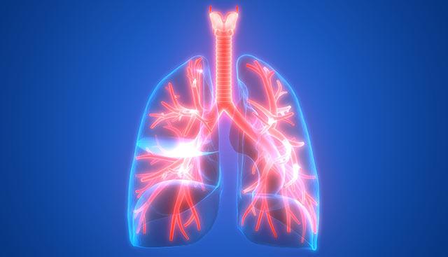 USPSTF: Screeningul cancerului pulmonar trebuie început după vârsta de 50 de ani la persoanele cu istoric de fumat de peste 20 pachete-an