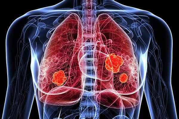 Glucoza ar putea fi cauza rezistenței cancerului pulmonar