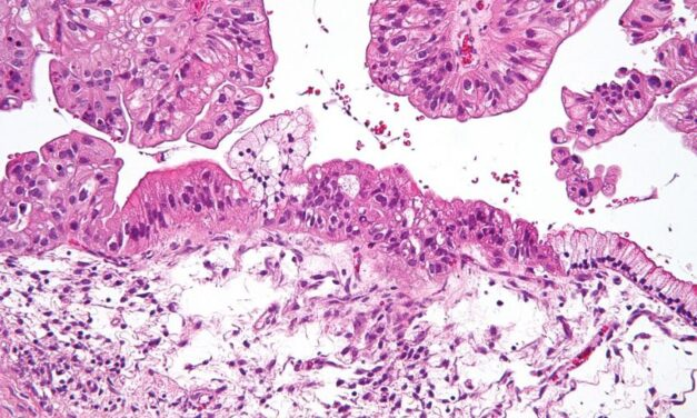 Cercetătorii au descoperit o nouă țintă pentru terapiile împotriva cancerului ovarian
