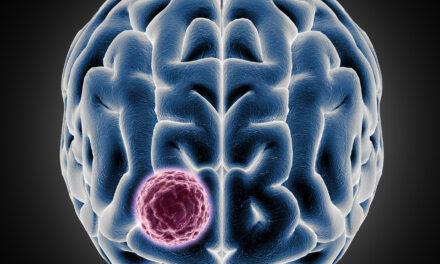 Terapie promițătoare pentru tumorile cerebrale