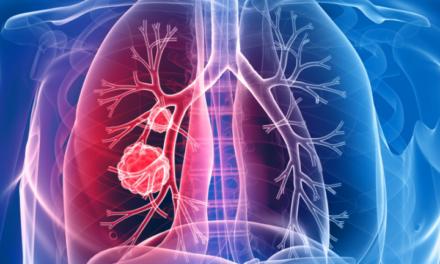 În fază incipientă, cancerul pulmonar poate fi tratat cu succes
