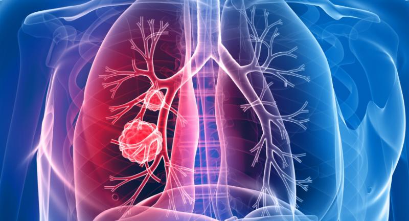 20 de semne ale cancerului pulmonar pe care nu trebuie să le ignori