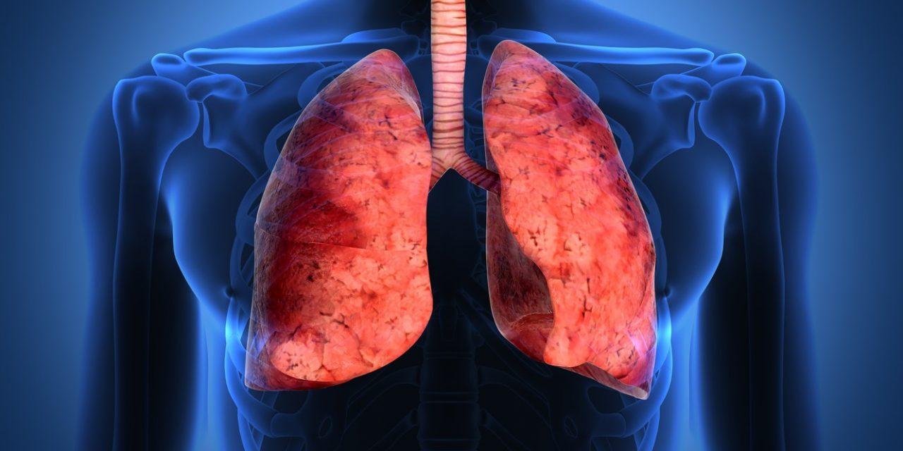 Românii pot afla online dacă plămânii lor prezintă simptomele unui cancer pulmonar