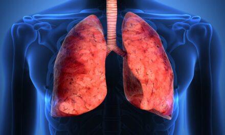Oamenii de știință de la IRB Barcelona identifică o potențială țintă pentru tratarea cancerului pulmonar