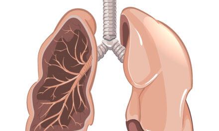FDA aprobă prima terapie țintită pentru cancerul pulmonar non-microcelular cu mutație de tip inserție la nivelul exonului 20 al genei EGFR