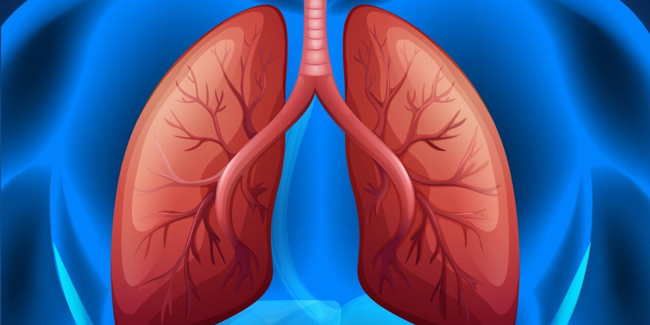 O nouă terapie combinată ar putea ajuta pacienții cu cancer pulmonar avansat