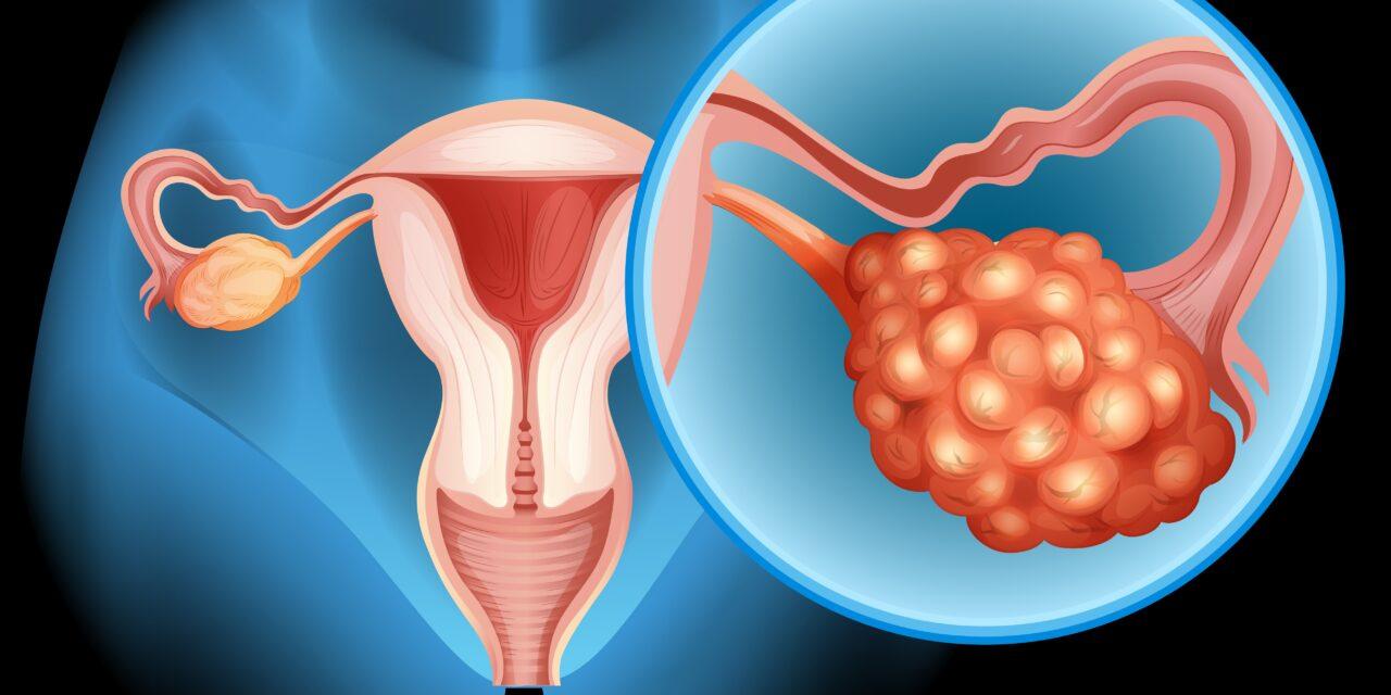 Depistarea precoce a cancerului ovarian nu garantează salvarea vieții pacientului