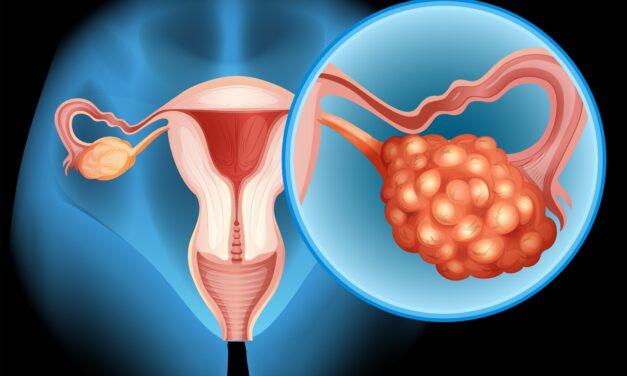 Nouă țintă terapeutică într-un subtip de cancer ovarian cu prognostic slab