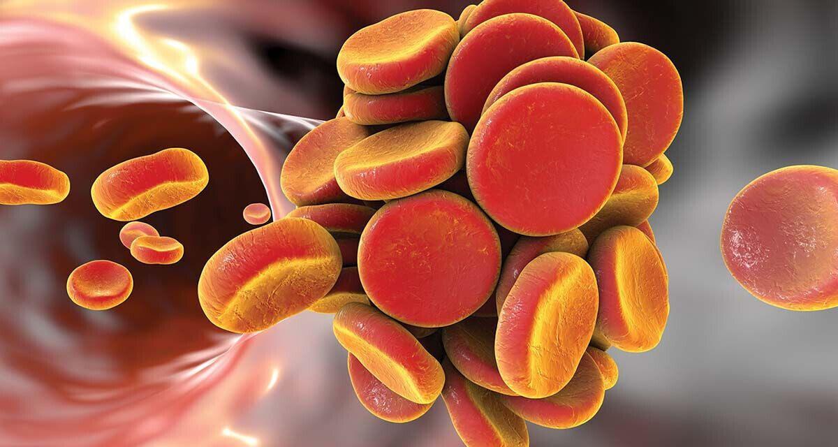 Riscul de tromboembolism arterial în funcţie de tipul de cancer