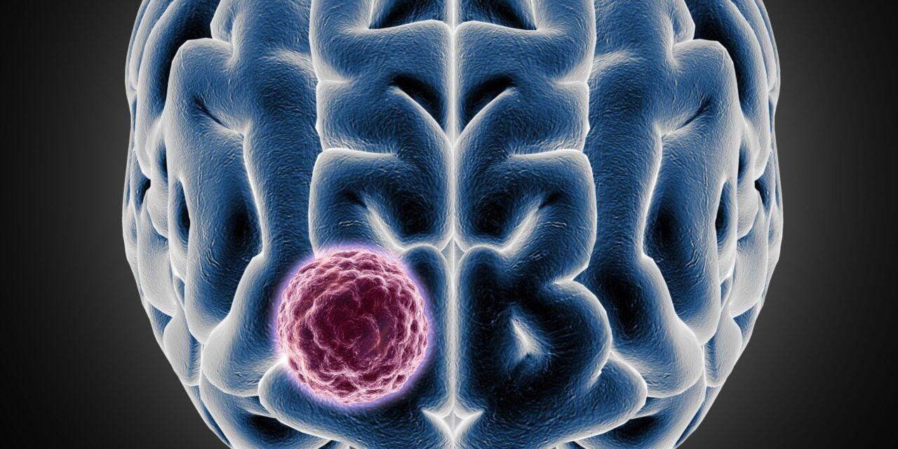 Tipurile de cancer cerebral, simptomele și opțiunile de tratament ale acestora