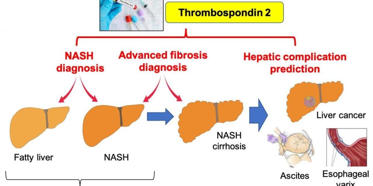 Identificarea pacienților cu risc de a dezvolta Boala Ficatului Gras Non-alcoolic, printr-un simplu test de sânge