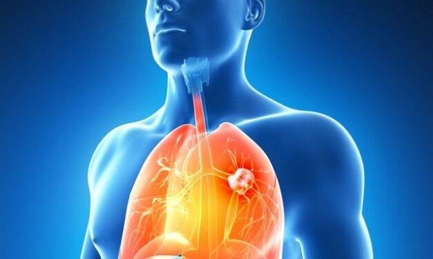 Cercetătorii au prezentat în cadrul unei lucrări, progresele înregistrate în tratarea cancerului pulmonar non-microcelular