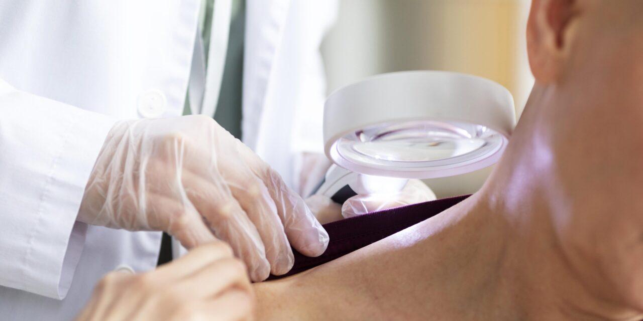 Prima tehnologie de scanare 3D la nivel mondial care ar putea permite detectarea timpurie a cancerului de piele