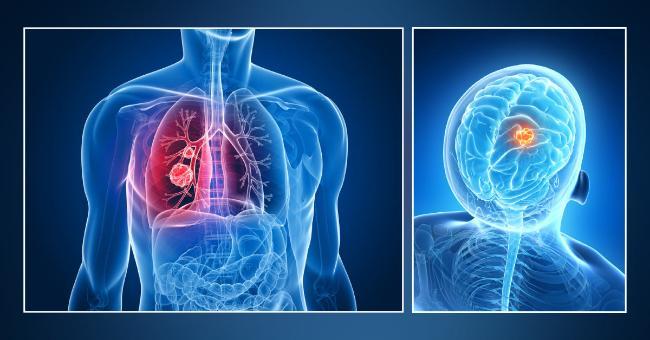 Cancerul pulmonar cu celule mici cu metastaze cerebrale