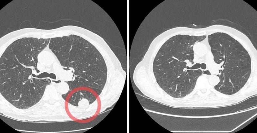 Inteligența artificială (AI) poate detecta mai devreme semnele cancerului pulmonar