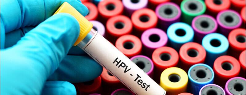Ghid OMS: testele de genotipare HPV ar trebui utilizate ca metodă principală de screening pentru cancerul de col uterin