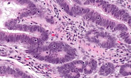 Nivelurile ridicate de celule imune care luptă împotriva cancerului ar putea indica o șansă mai mare de supraviețuire