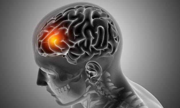 Tumorile pe creier – semnele care anunță cancerul cerebral