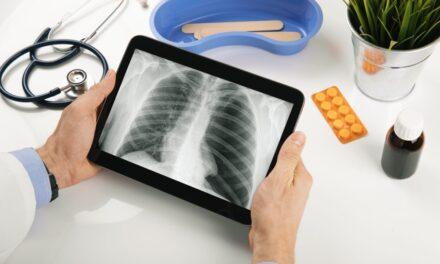 Cancerul pulmonar cu celule mici (SCLC): tratamente existente și terapii în curs de dezvoltare