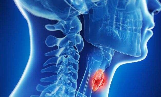 Un tratament nou distruge tumorile bolnavilor cu cancer de cap și gât în fază terminală