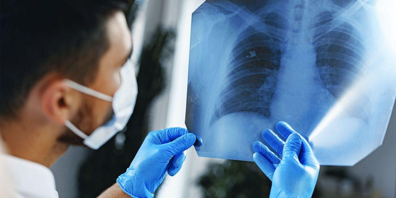 Carta Albă a biomarkerilor în cancerul pulmonar non-microcelular: importanța diagnosticului de precizie pentru cele mai bune rezultate terapeutice